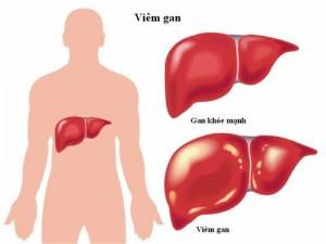 Nguyên nhân và triệu chứng của bệnh viêm gan