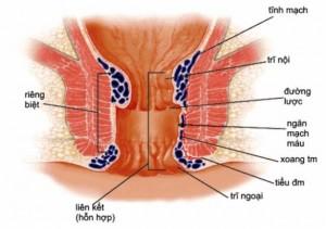 Bệnh trĩ ngoại, trĩ nội