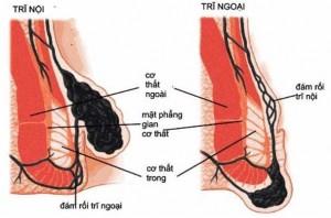 Búi trĩ nội và búi trĩ ngoại