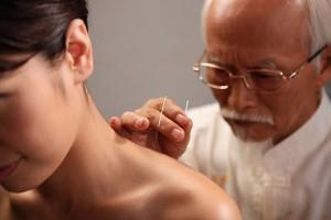 Có nhiều cách châm cứu trong điều trị viêm gan