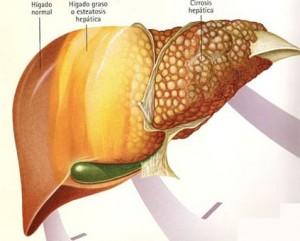 Phân loại bệnh viêm gane theo chứng hiếp thống