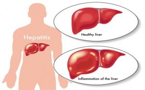 Triệu chứng của viêm gan mạn tính
