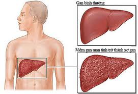 Viêm gan mạn tính dễ dẫn đến trở thành ung thư ganViêm gan mạn tính dễ dẫn đến trở thành ung thư gan