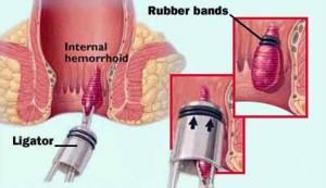 Bệnh trĩ sẽ được chữa khỏi hoàn toàn nếu  người bệnh biết tuân thủ quy định sau khi phẫu thuật trĩ