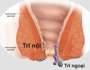 Bệnh trĩ nội thường khó phát hiện hơn so với bệnh trĩ ngoại