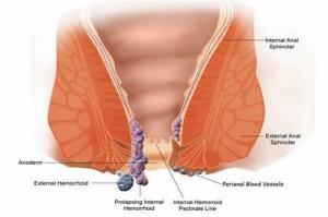 Phương pháp điều trị trĩ ngoại