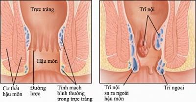 Các giai đoạn phát triển của bệnh trĩ nội