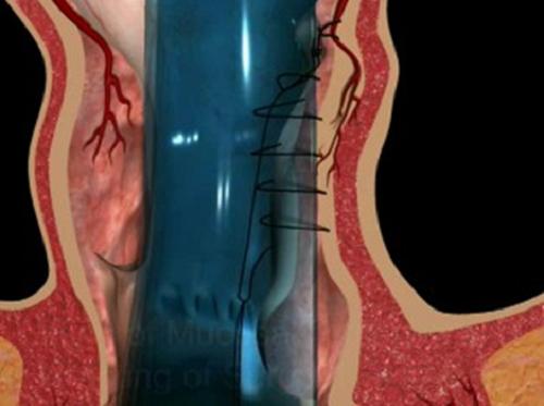 Ưu và nhược điểm khi sử dụng phương pháp phẫu thuật Longo