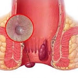 Bệnh trĩ cần được phát hiện sớm và kịp thời điều trị