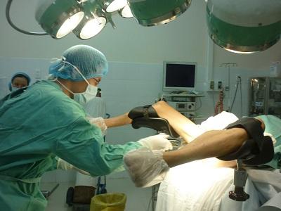 Phương pháp phẫu thuật để điều trị bệnh trĩ
