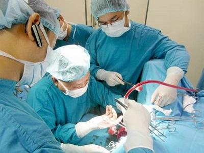 Phương pháp phẫu thuật điều trị bệnh trĩ Longo