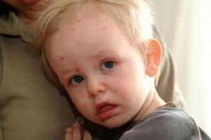 Một số biến chứng của bệnh thủy đậu