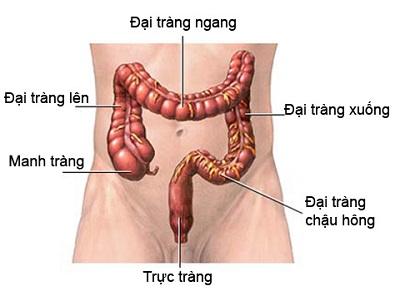 Các loại ung bướu phát sinh ở đại tràng (P1)