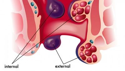 Trĩ ngoại tắc mạch có nguy hiểm không?