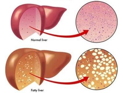 Biểu hiện của bệnh gan nhiễm mỡ
