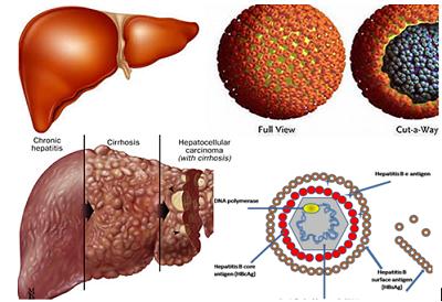 Các bệnh về viêm gan
