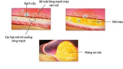 Điều trị mỡ trong máu cao