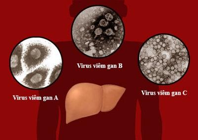 Bạn nên chú ý chế độ ăn uống cho người bị viêm gan A
