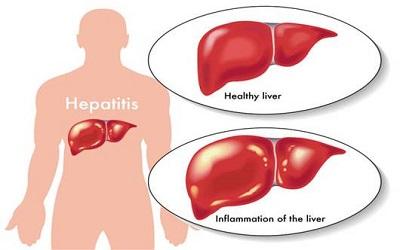 Biểu hiện của viêm gan cấp tính mà bạn nên biết