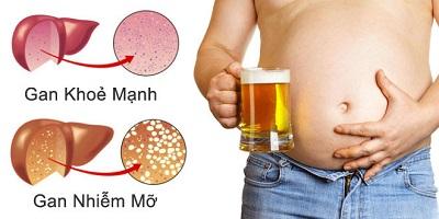 Tìm hiểu về gan nhiễm mỡ