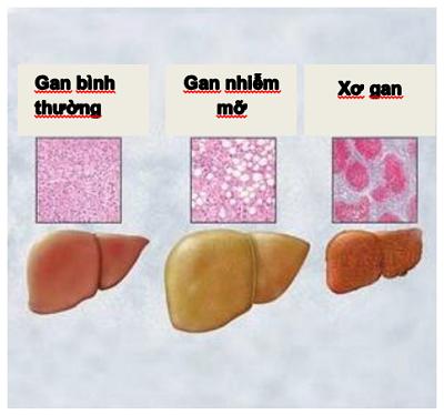 Tìm hiểu về bệnh gan nhiễm mỡ