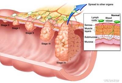 Một số triệu chứng của bệnh ung thư đại tràng (P1)