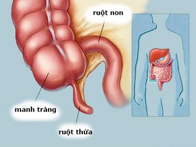 Các bệnh của ruột non