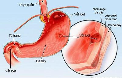 Những chẩn đoán đặc biệt khi viêm dạ dày ăn mòn